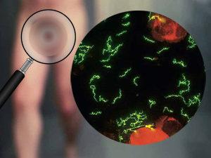 сифилис на половом члене
