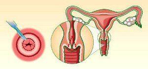 воспаление эрозии шейки матки симптомы