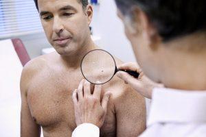 Симптомы ВПЧ у мужчин
