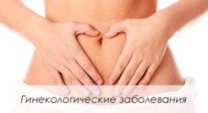 Женские болезни по гинекологии